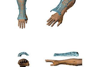 3D print model Technology Medical on broken